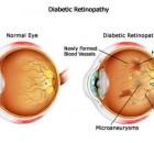 high-blood-sugar-level-morning-gestational-diabetes-oklahoma-city-oklahoma-42930